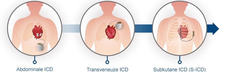 Evolutie van ICD-apparaten naar de S-IDC
